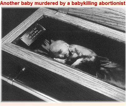 Baby killed by an abortionist